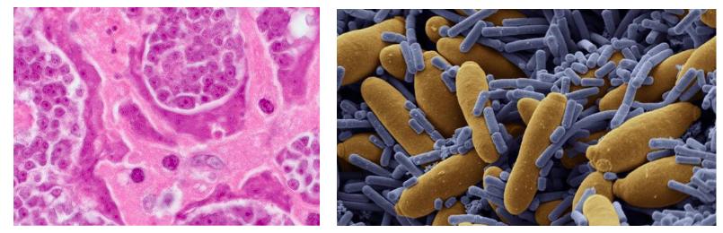 Risultati immagini per disbiosi stile di vita parassitosi